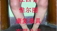 宜春江西器具公司—如何矫正O型腿